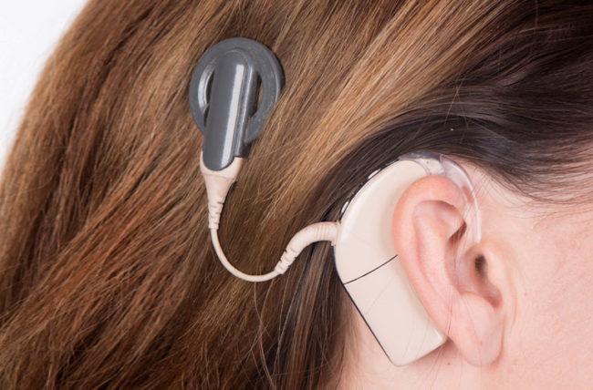 سن مناسب بزرگسالان برای کاشت حلزون - عوارض جانبی حلزون شنوایی چگونه است؟