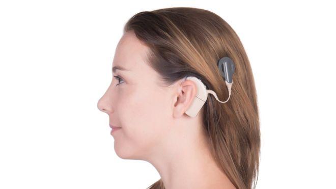 حلزون شنواییچیست - کاشت حلزون چیست