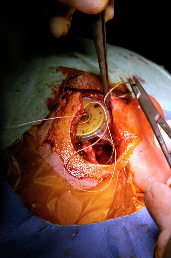 جراحی سمعکهای کاشتنی (سمعک کاملا کاشتنی)