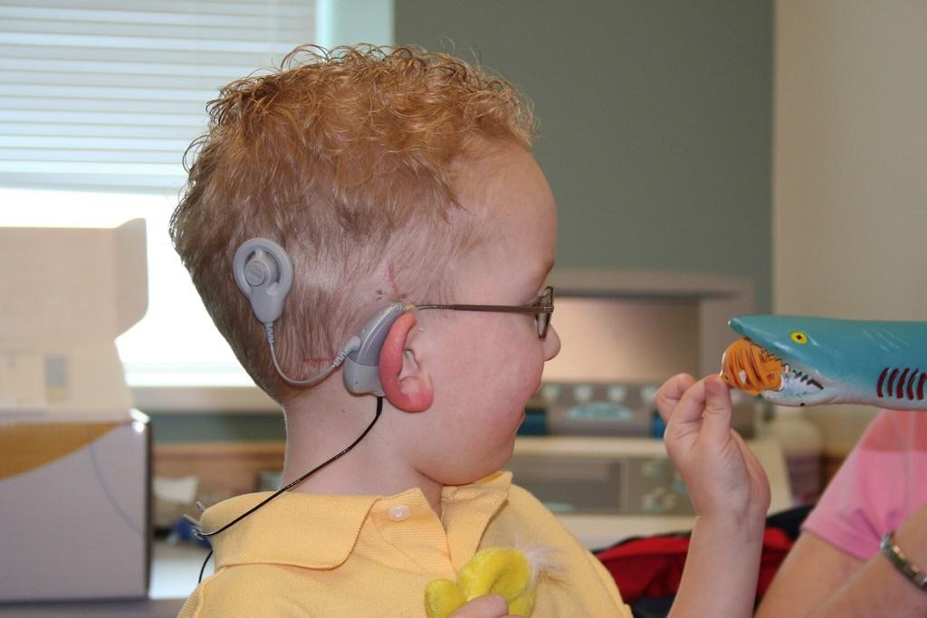 حلزون شنواییچیست - طریقه کاشت حلزون در گوش