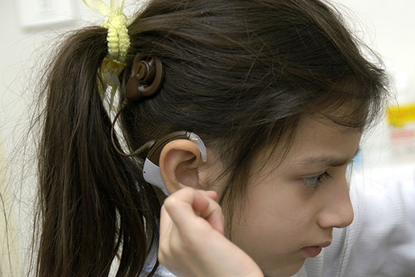 ایا کاشت حلزون خوب است - پروتزحلزون شنوایی