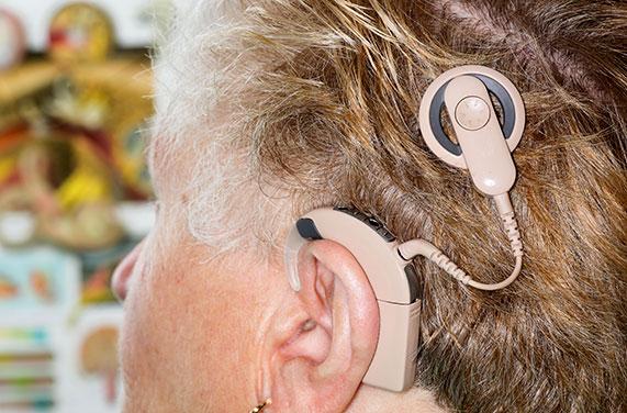 پروتز کاشت حلزون شنوایی - تصاویرحلزون شنوایی